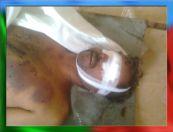 Tortured body of Shaheed Rasool Baksh Mengal