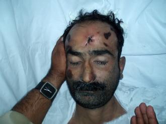 shaheed-advocate-ali-sher-kurd-lsst-dedar.jpg