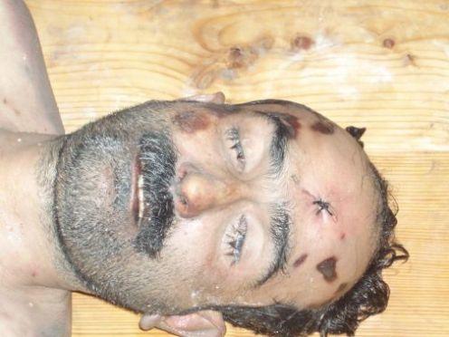 Shaheed Advocate Ali Sher Kurd- tortured body 2