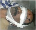 Shaheed Advocate Ali Sher Kurd- tortured body 3