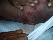 shaheed-advocate-ali-sher-kurd-tortured-body.jpg