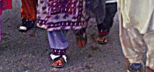 Farzana Majeed's blistered feet